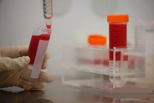 抗gst蛋白单抗杂交瘤细胞4f10细胞