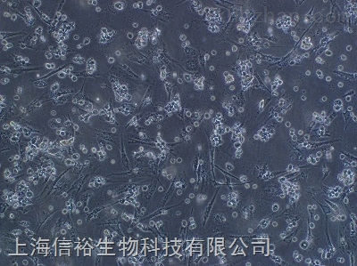 HMC-1 细胞;人肥大细胞