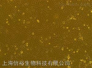 U-118 MG细胞;人脑星形胶质母细胞瘤