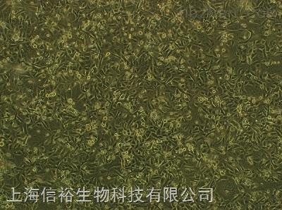 TK10细胞;人肾癌细胞株