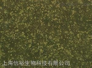 Kasumi-6细胞;急性髓系细胞白血病细胞