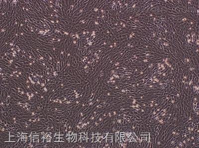 MRC-5 细胞;人胚肺细胞