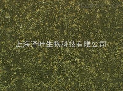 HCT-8(人盲肠腺癌细胞)