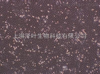 NCI-H520(人肺鳞癌细胞)