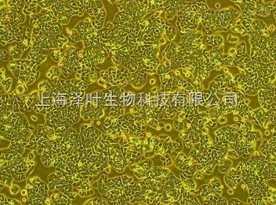 人心脏微血管内皮细胞