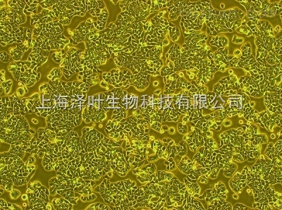 L Wnt-3A(小鼠皮下结缔组织细胞)