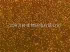 OKT 11(小鼠杂交瘤细胞(抗CD2))