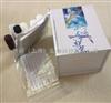 人P鈣黏蛋白/胎盤鈣黏蛋白(P-cad)elisa試劑盒勁爆優惠